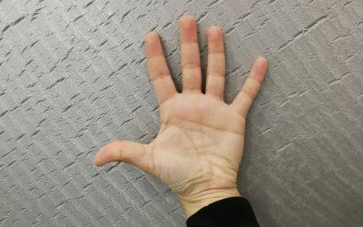Artritis Reumatoide: síntomas y tratamiento.